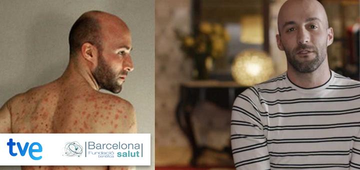La Ciencia de la Salud – Aceptar la psoriasis